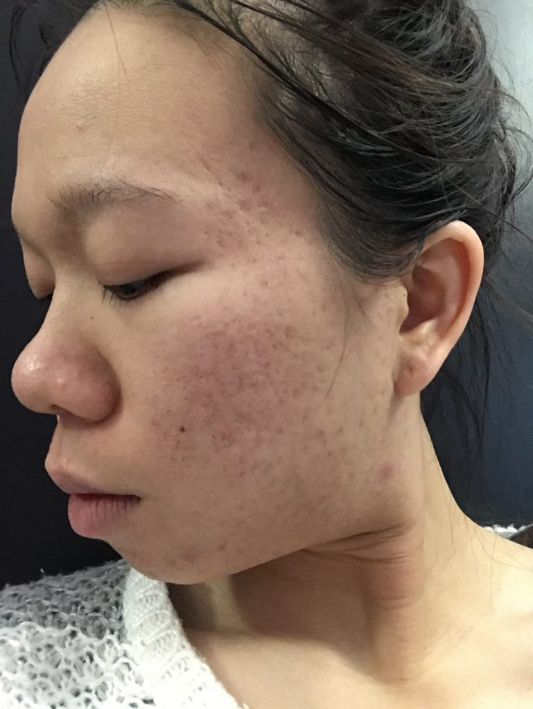 cleared up my skin in 1 month